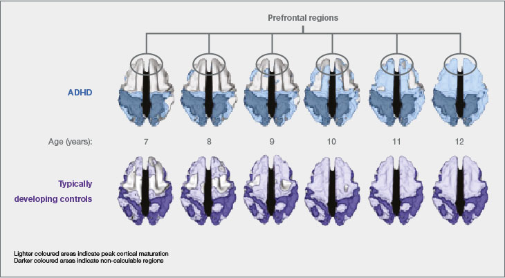 Cortical Maturation In Patients With And Without ADHD