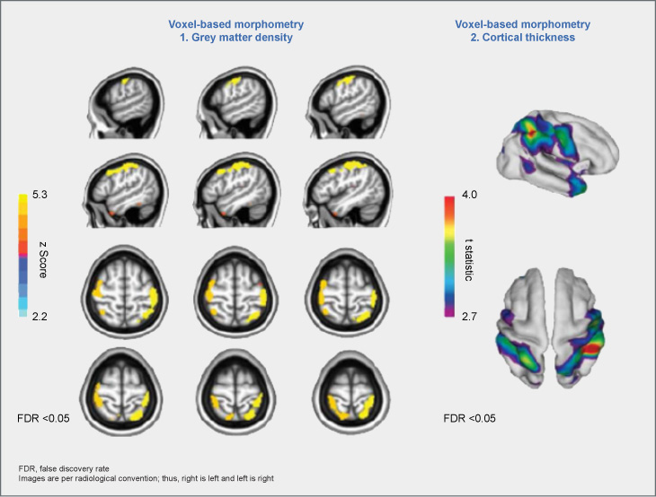 Grey matter density and cortical thickness in patients with and without ADHD